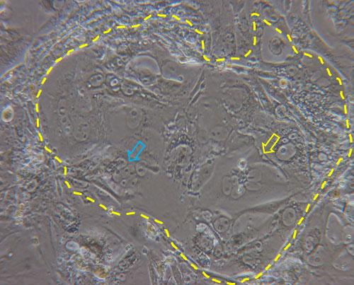 Figure 2. Dashed line highlights a colony of TSCs cultured for three days in basal medium (without heparin and FGF4) in which syncytialized structures are evident (yellow arrow) together with cluster of cells in the process of forming syncytia (blue arrow).